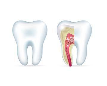 root canal treatment | new orleans