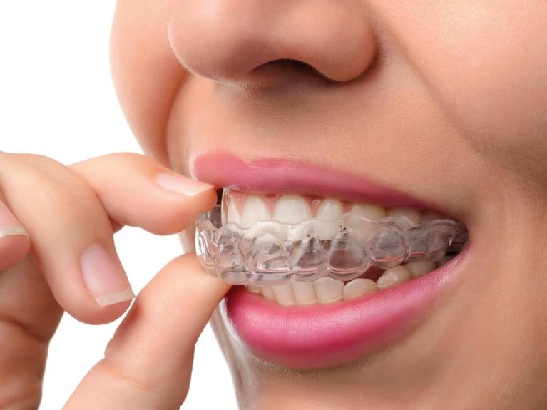 invisible braces | clear correct | new orleans